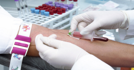 alzheimers-blood-test تحليل الدم -2
