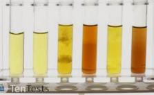 لون البول الطبيعي والغير طبيعي وأسبابه بالتفصيل معمل