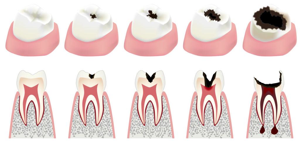 علاج تسوس الاسنان والوقاية بطرق حديثة وبسيطة ...